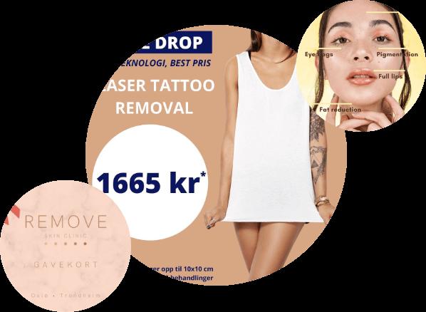 remove-laser-tattoo-removal-pris
