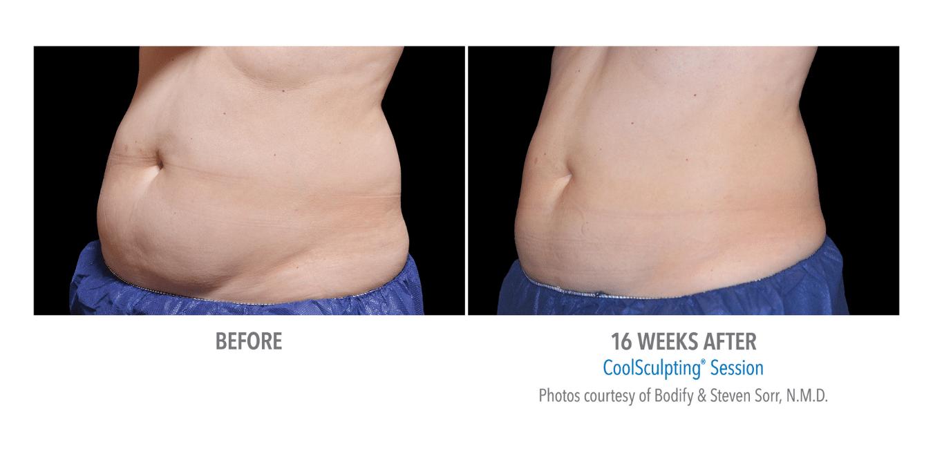 Cryolipolyse resultater på mage 16 uker etter behandling med CoolSculpting.