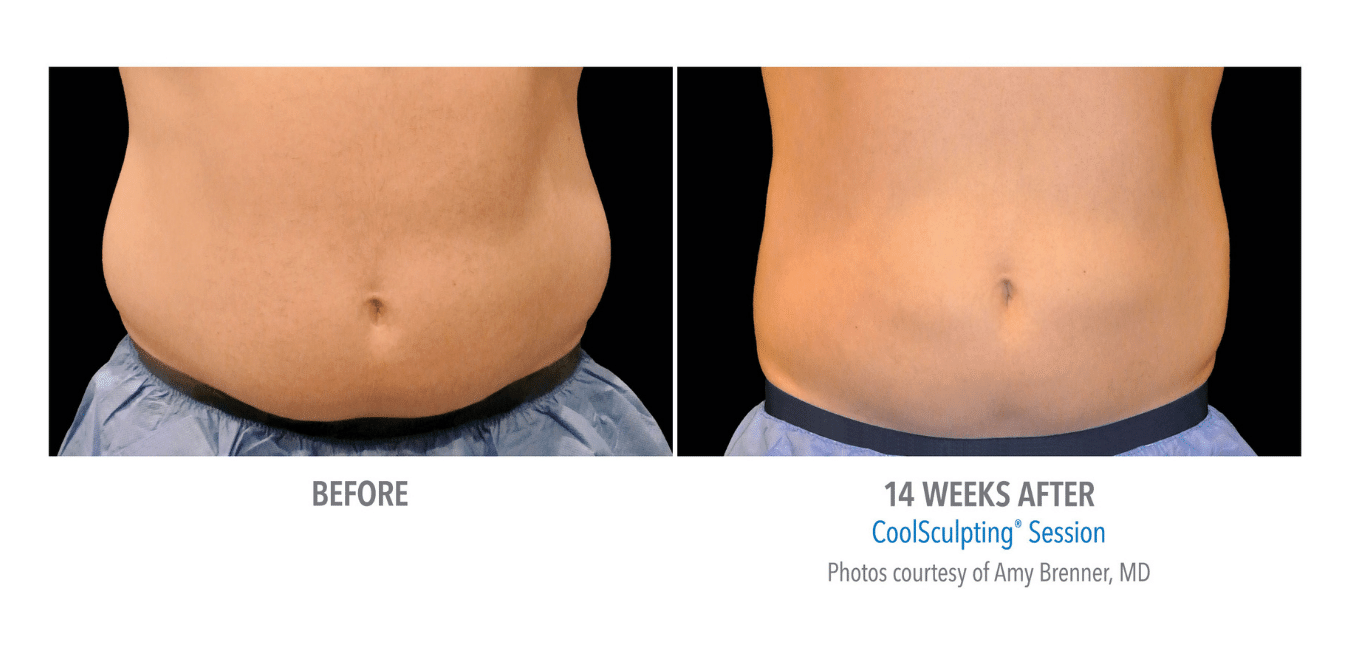 Til venstre vises mage med fett forut for CoolSculpting. Til høyre vises mage med redusert fett etter CoolSculpting behandling.