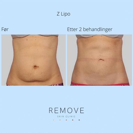 Til venstre vises mage med fett forut for Z-lipo behandling. Til høyre vises magen uten fett etter Z-lipo behandling