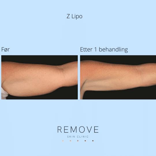 Til venstre vises underarm med fett forut for Z-lipo behandling. Til høyre vises underarmen uten fett etter Z-lipo behandling