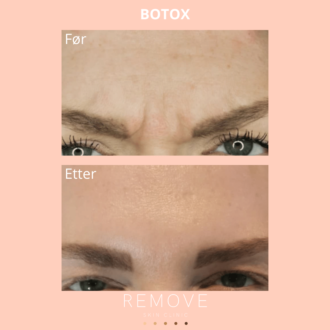 Til venstre: Panne med rynker forut for botox behandling av hud. Til høyre: Panne helt uten rynker etter botox behandling.