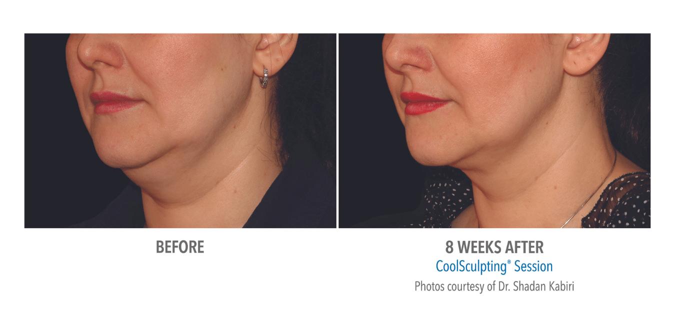 Til venstre vises ansikt med fet hake forut for CoolSculpting. Til høyre vises hake med redusert fett etter behandling.