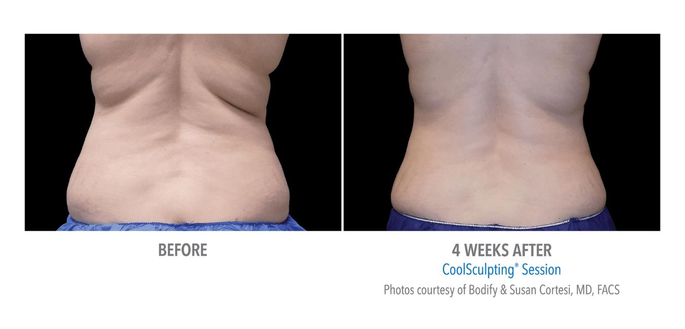 Til venstre vises rygg/side med fett forut for CoolSculpting behandling. Til høyre vises rygg/side med redusert fett etter CoolSclupting behandling.